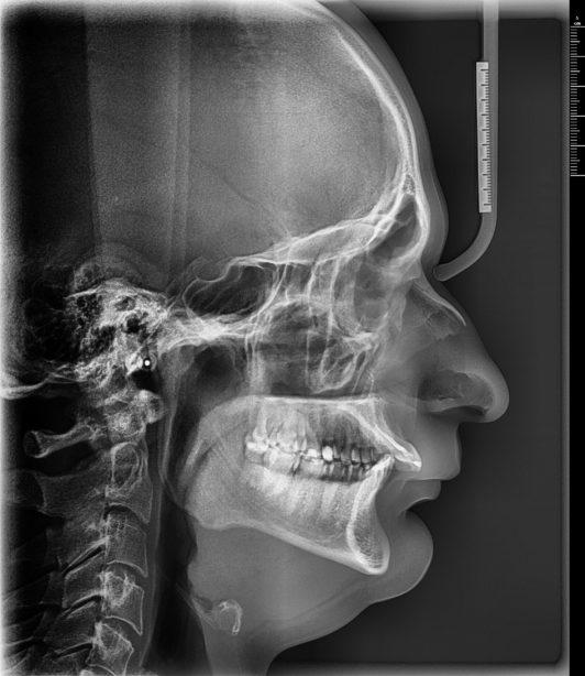 cefalometryczne-telerentgen-boczny-głowy-rtg-niepodleglosci-kraków-3